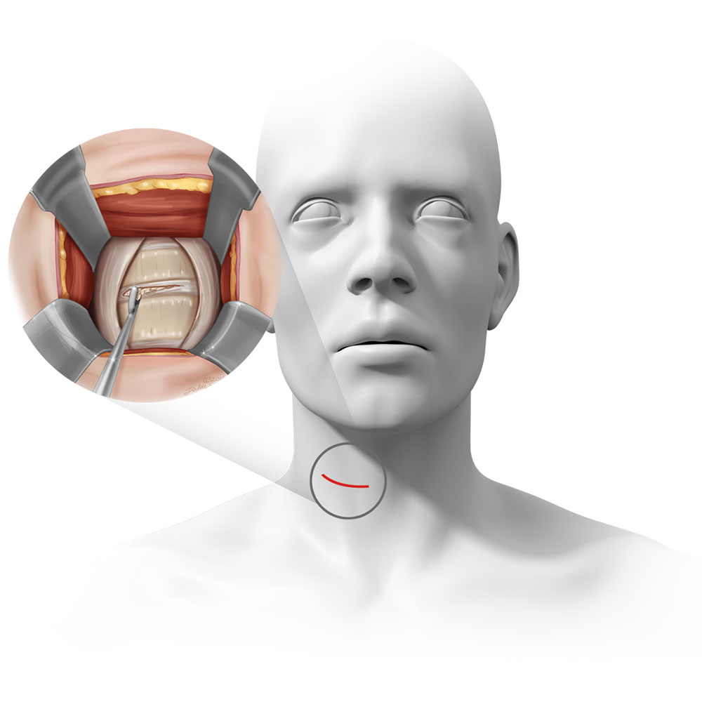 ACDF location, incision, and surgical exposure.