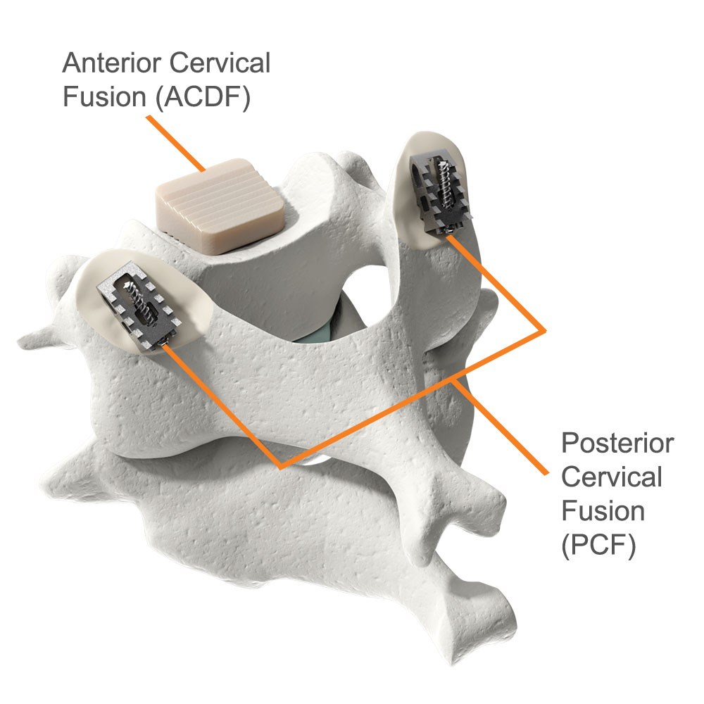 Implants used in the ACDF and PCF procedures